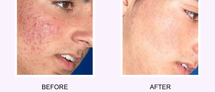 Acne Scars Before & After