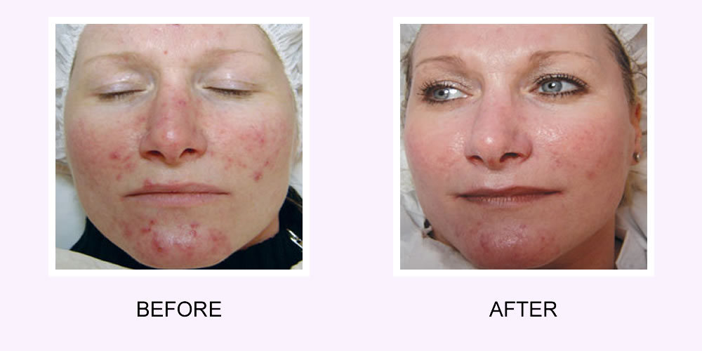 Acne Scar Removal on a Face Before & After