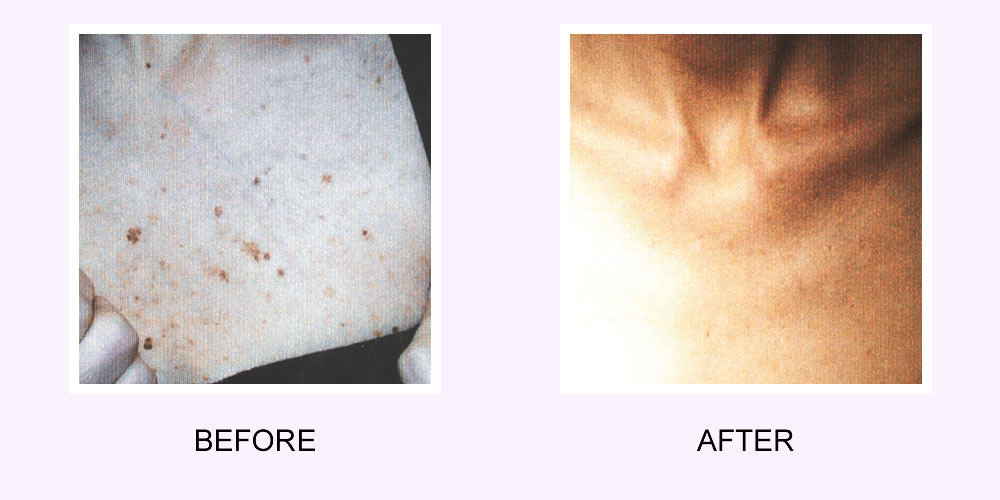 Before and After Acne Scar Removal