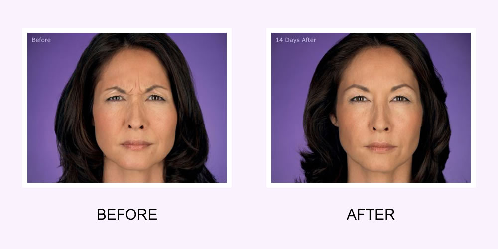 Botox Female Face Before and After