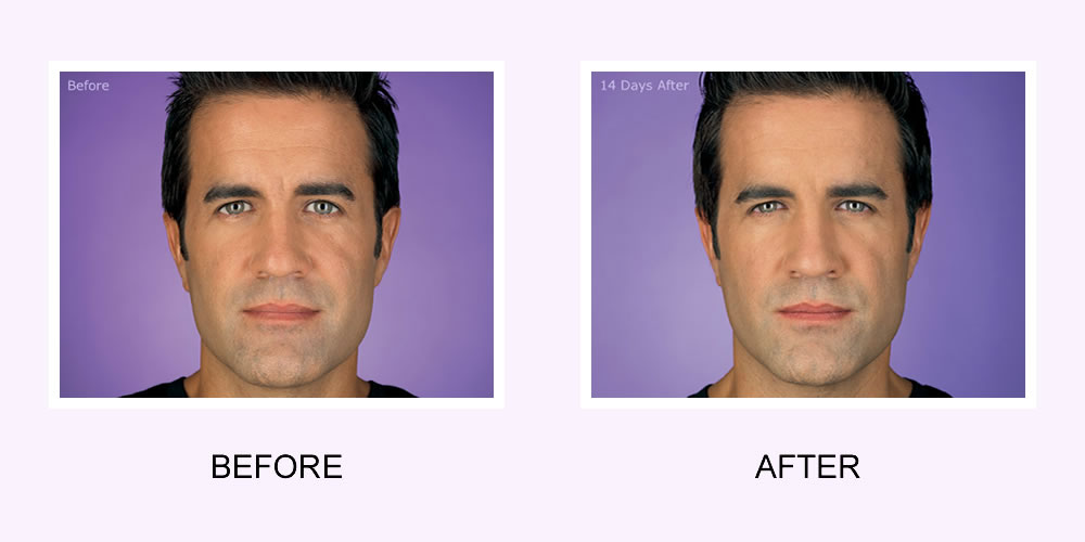 Botox Male Face Before and After