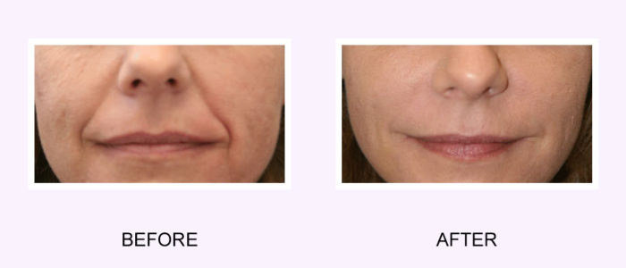 Dermal Fillers Before & After