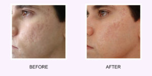 Fractional Resurfacing Before and After