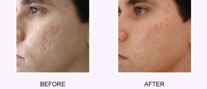 Fractional Resurfacing Before & After