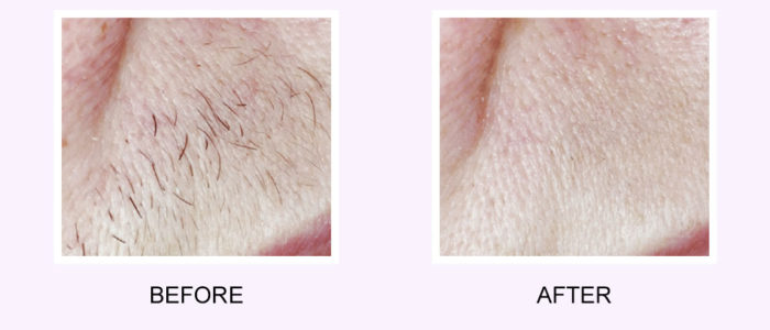 Upper Lip Hair Removal Before & After