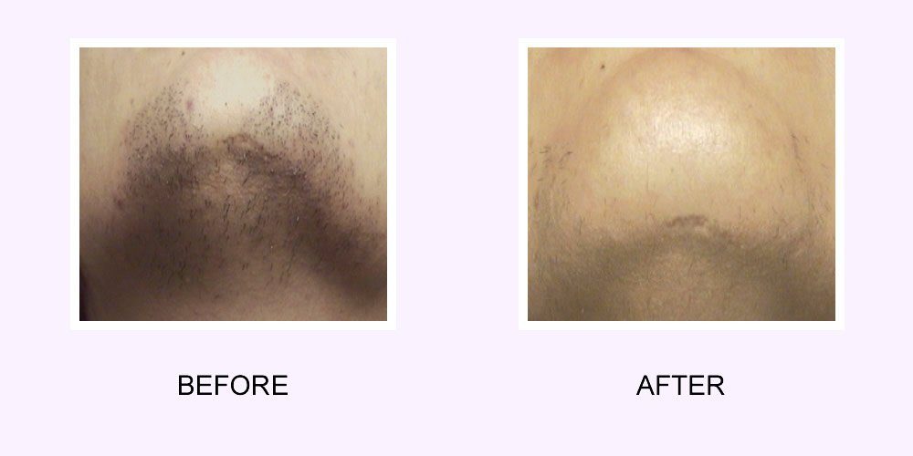 Laser Hair Removal Before & After