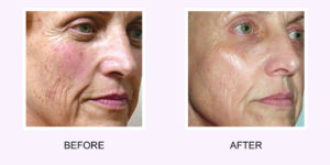 Photo Rejuvenation Before & After