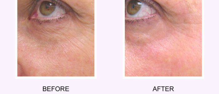 Photo Rejuvenation Before and After Photo