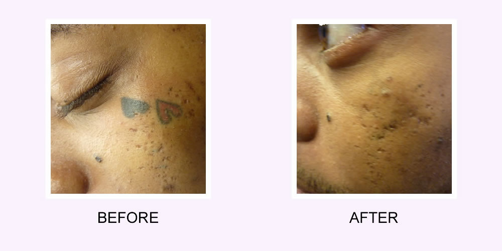 I want my tattoo removed... I regret my tattoo