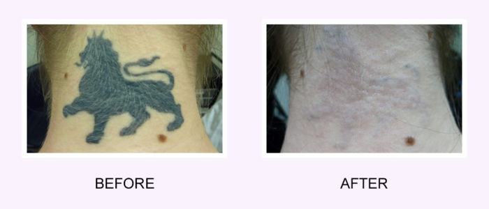 Lion Tattoo Removal Before and After