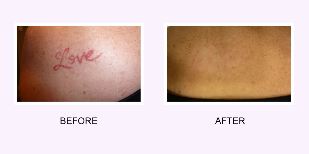 Tattoo Removal Before & After