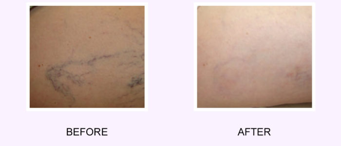 Vein Removal Before & After