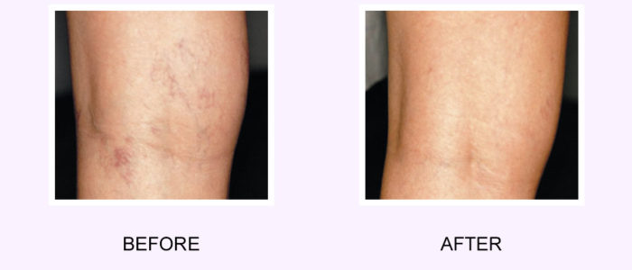 Laser Vein Removal Before & After