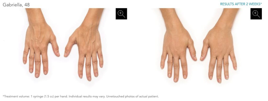 Radiesse before & after photo of hands